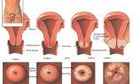 Симптомы рака шейки матки и лечение онкологического заболевания