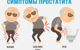 Диагностика аденомы простаты у мужчин: эффективные методики