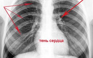 Консультация врача-фтизиатра при выявлении туберкулеза легких