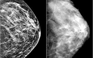 Виды мастопатии молочных желез: общепринятая классификация
