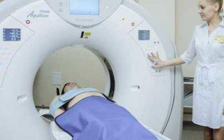 Какие нарушения может выявить компьютерная томография легких