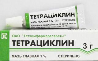 Симптомы вторичного сифилиса и профилактика развития осложнений