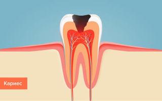 Помощь стоматолога при развитии заболеваний зубов и полости рта
