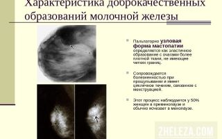 Узловая мастопатия: причины развития и различные формы болезни