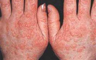 Лечение аллергии на холод и способы купирования проявлений недуга