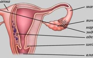 Симптомы аденомиоза матки и основные методы лечения патологии