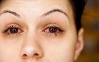 Причины появления глаукомы и подходы к лечению заболевания