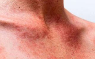 Симптомы инфекционного мононуклеоза и подходы к лечению патологии