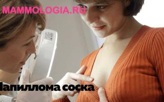 Папилломы на сосках: лечение и профилактика появления наростов