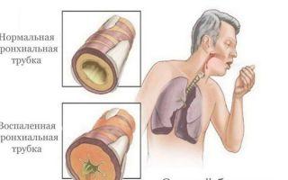 Приступы кашля: при каких заболеваниях возникают и как лечатся