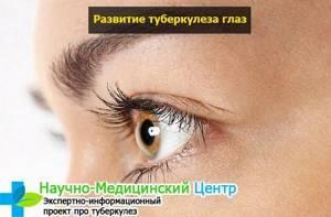 Симптомы развития туберкулеза глаз и способы терапии патологии