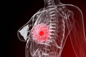 Мастопатия и лимфоузлы под мышкой: о чем говорит их увеличение
