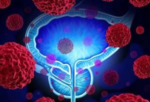 Массаж простаты при аденоме предстательной железы: плюсы и минусы