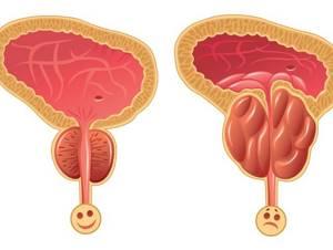 Застойный простатит: провоцирующие факторы и течение заболевания