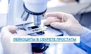 Лейкоциты в секрете простаты: норма и отклонение в анализах