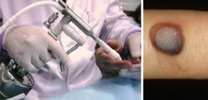 Криодеструкция бородавки: технология удаления и противопоказания