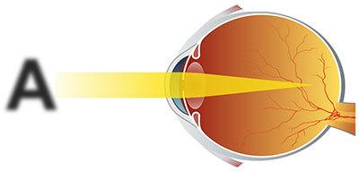 Лечение миопии глаз консервативным и хирургическим методом