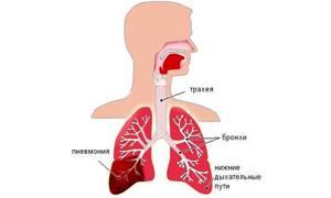 Гербион сироп с подорожником и мальвой: средство от сухого кашля