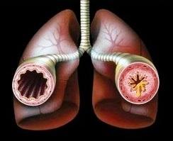 Хрипы в грудине и кашель: лечение и профилактика развития