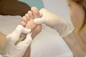 Как вывести бородавку на подошве ноги и предупредить ее появление