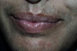 Симптомы гирсутизма и способы восстановления гормонального фона
