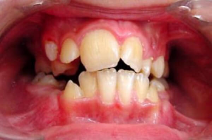 Лечение каких патологий зубов входит в компетенцию ортодонта