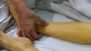 Симптомы болезни Боткина и основные методы лечения заболевания