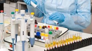 Анализ простаты: виды исследований и техника их проведения