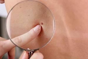 Бородавки при беременности: симптомы и методы устранения наростов