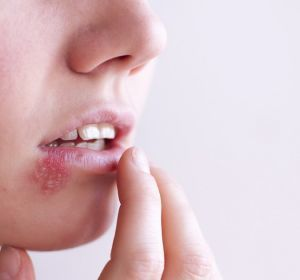 Симптомы герпеса на губах и методы лечения инфекционной болезни