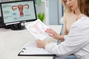 Симптомы гидросальпинкса и методы лечения непроходимости труб