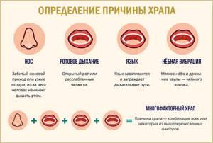 Таблетки от храпа: обзор препаратов и особенности применения