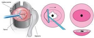 ВПЧ и рак шейки матки: методы диагностики и лечения заболевания
