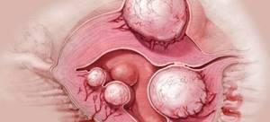 Симптомы эндометриоза и основные методы лечения заболевания