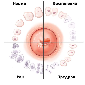 Для диагностики каких патологий задействуется метод кольпоскопии