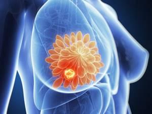 Фиброзно кистозная мастопатия молочных желез: чем опасна болезнь