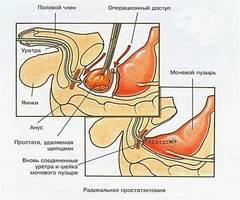 Хирургическое лечение аденомы простаты: разновидности и осложнения