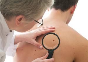 Плоские бородавки: медикаментозная и народная терапия наростов
