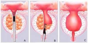 Трансуретральная резекция аденомы простаты: особенности операции