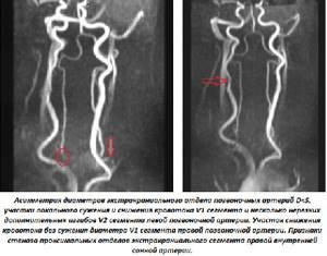 Как проводится магнитно-резонансная томография сосудов шеи