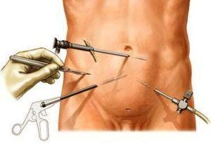Методы лечения простатита: терапевтические и хирургические