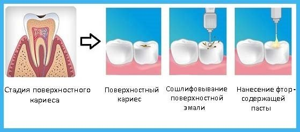 Симптомы начального кариеса и методы лечения заболевания зубов