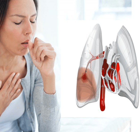 Кашель при сердечных заболеваниях: о чем говорит и как лечится