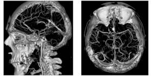 Особенности проведения компьютерной томографии головы и сосудов