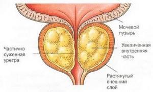 Склероз простаты: как диагностируется и лечится патология