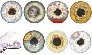 Симптомы увеита и методы лечения патологии глазного яблока