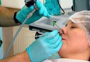 Операция при храпе: особенности проведения и противопоказания
