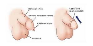Симптомы парафимоза и основные подходы к лечению заболевания