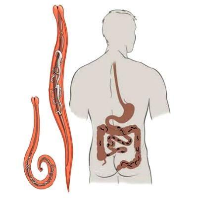 Симптомы гельминтоза и профилактика заражения паразитами