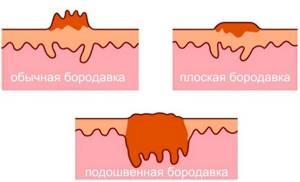 На коже бородавки: диагностика и подходы к лечению наростов